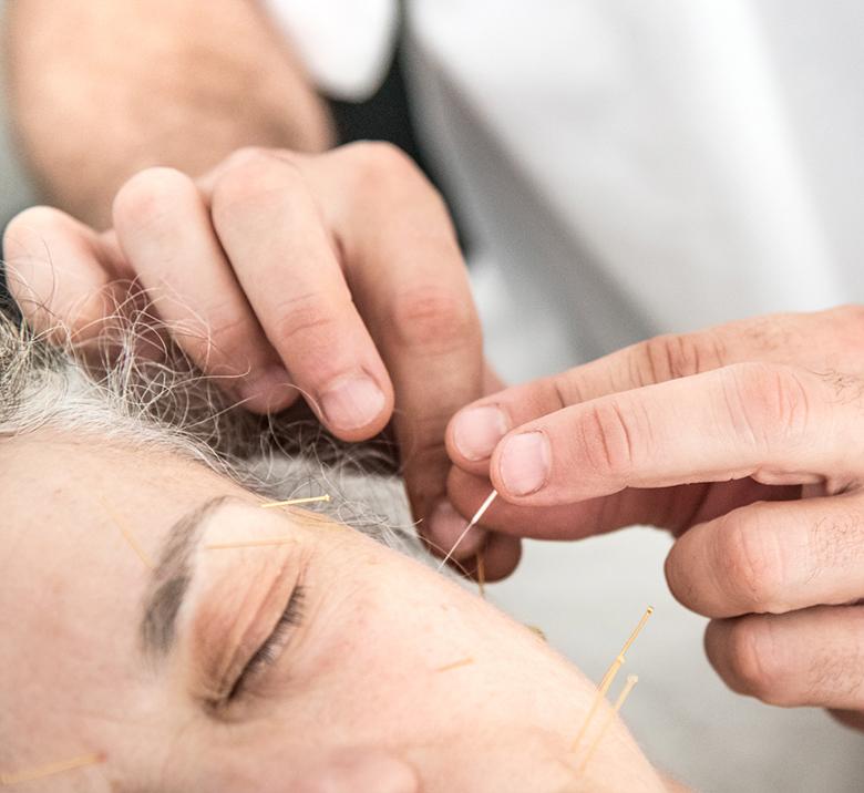tp-acupuntura